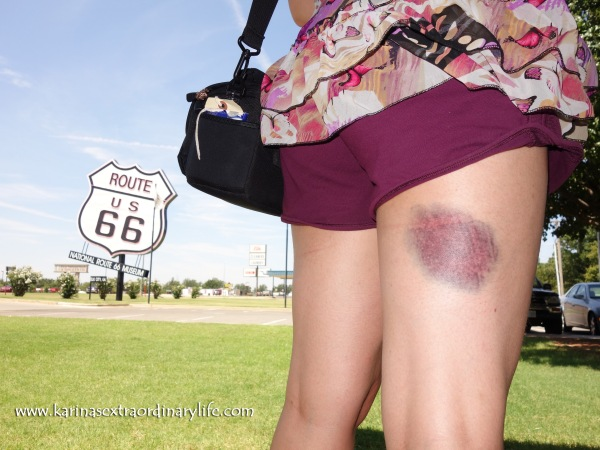 The clumsy Canadian in her short-shorts, showing off her new 7 month long temporary purple tattoo. Ouch! El Reno, Oklahoma, USA – Karina Noriega